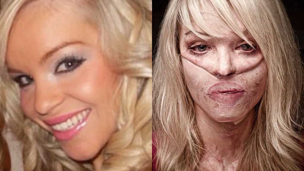 Katie Piper was doused with acid 13 years ago on the orders of her ex-boyfriend.  More than 400 plastic surgeries.  This is what it looks like now