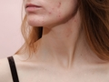 Hormonal acne: how do we recognize it?  Dermatologists talk about 5 signs
