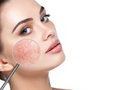 Diet and Rosacea