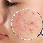 Skin lesions on certain parts of the body – what can they testify to?